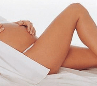 You are currently viewing Gestantes podem fazer tratamento de varizes?