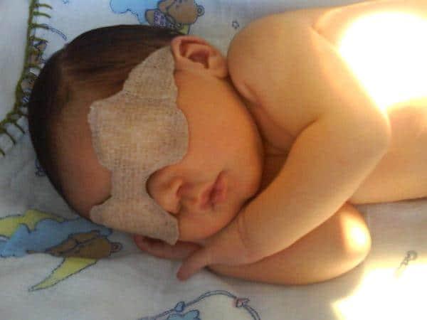 Icterícia em bebês (foto: Divulgação)
