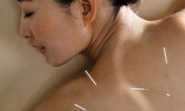 Conheça a acupuntura para o aleitamento