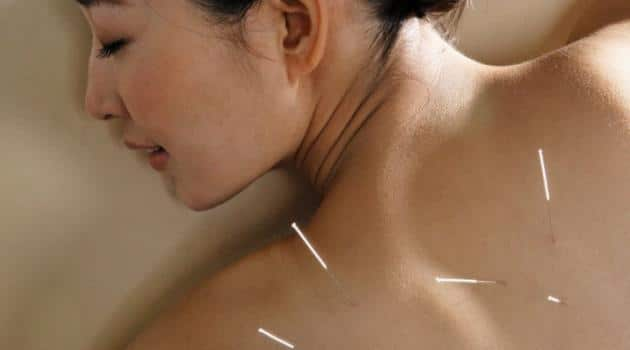 You are currently viewing Conheça a acupuntura para o aleitamento