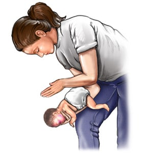 You are currently viewing O que fazer em caso de asfixia do bebê?