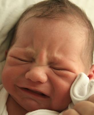 You are currently viewing Conjuntivite no bebê, cuidados