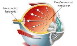 Glaucoma durante a gestação, o que fazer?