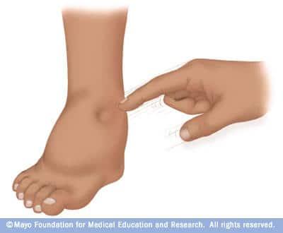pés inchados gravidez