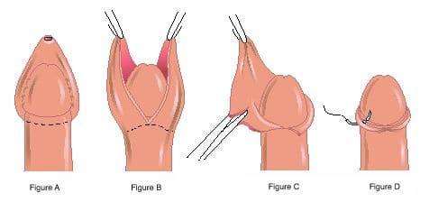 cirurgia fimose