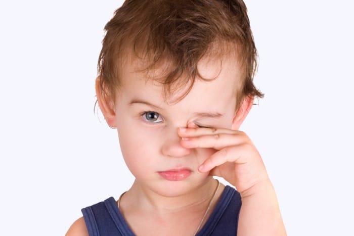 olho de bebe com remela amarela