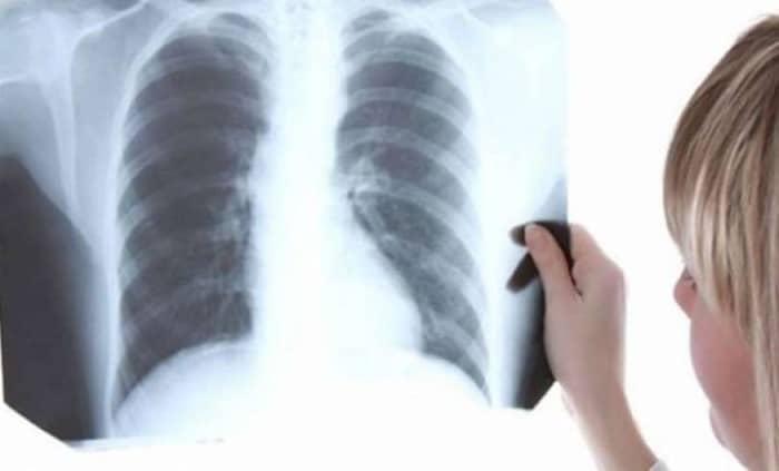exames radiológicos na gestação
