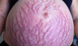 Mulher descobriu 'alergia à gravidez' durante primeira gestação