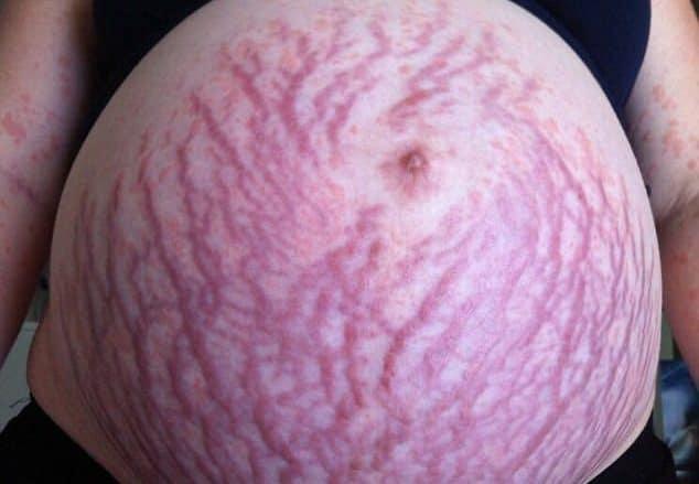 You are currently viewing Mulher descobriu 'alergia à gravidez' durante primeira gestação