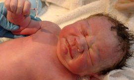Imagem de recém-nascido segurando DIU viraliza na web