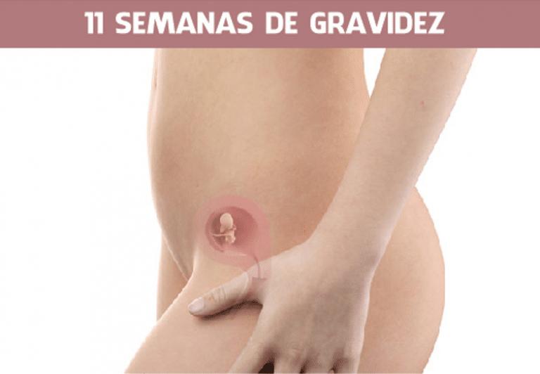 Read more about the article 11 semanas de gravidez