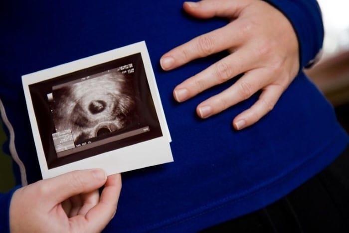 11 semanas de gravidez