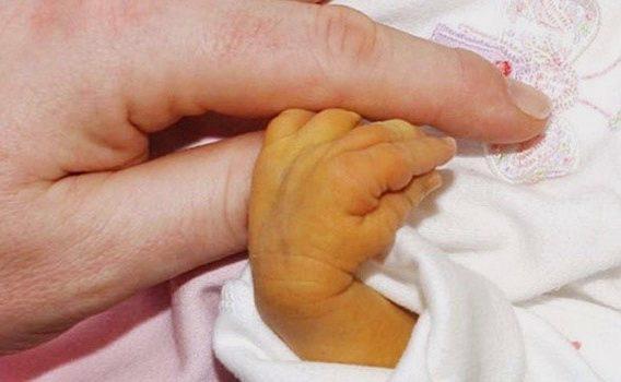 tiriça em bebe