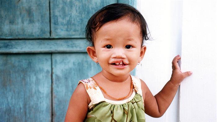 lábio leporino é considerado deficiencia