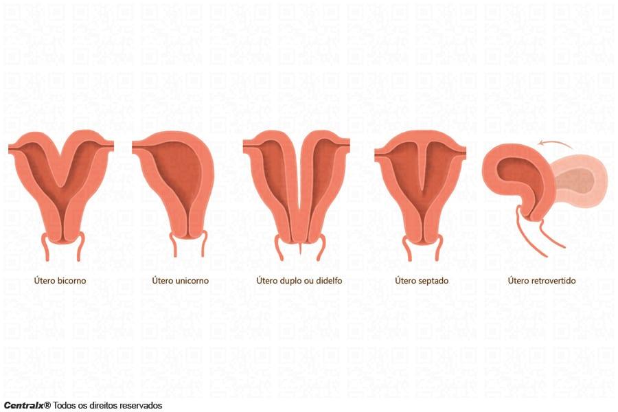 tero bicorno na gravidez sintomas riscos e cuidados