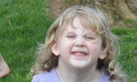 Síndrome de Turner: O que é, Causas e Tratamento