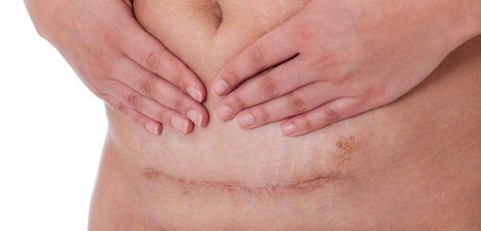 quanto tempo demora para cicatrizar os pontos internos da cesarea
