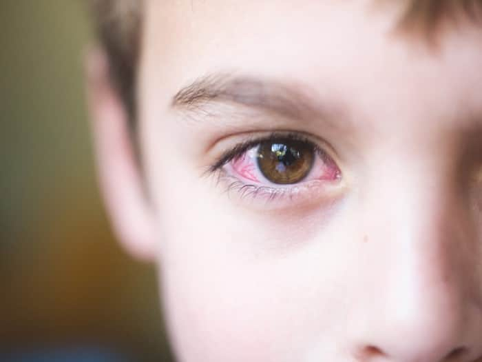 remedio caseiro para conjuntivite infantil