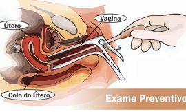 Exame Preventivo: Como é feito, para que serve, quando fazer, dói?