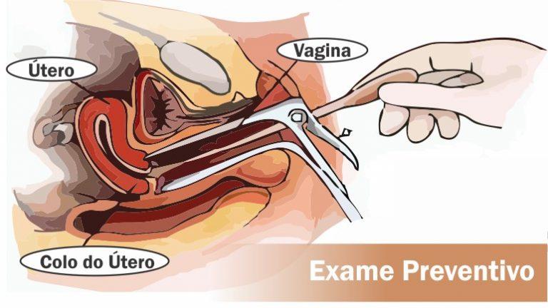 Read more about the article Exame Preventivo: Como é feito, para que serve, quando fazer, dói?