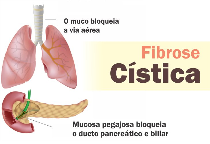 fibrose cistica fotos