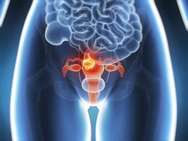 Histerectomia fotos