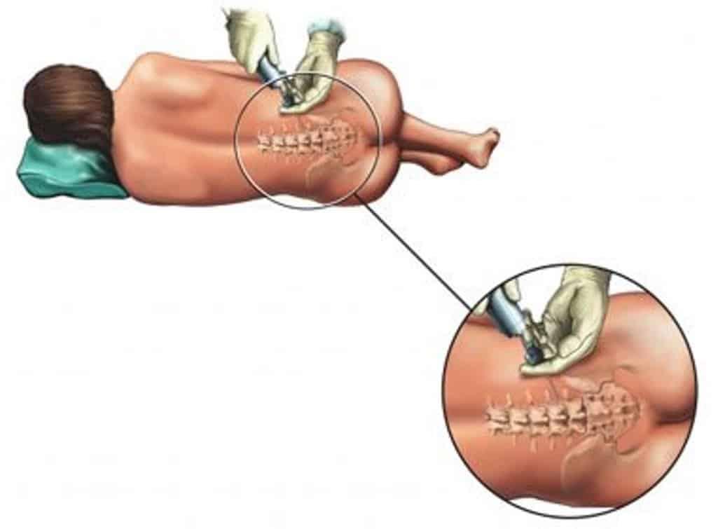 como funciona anestesia