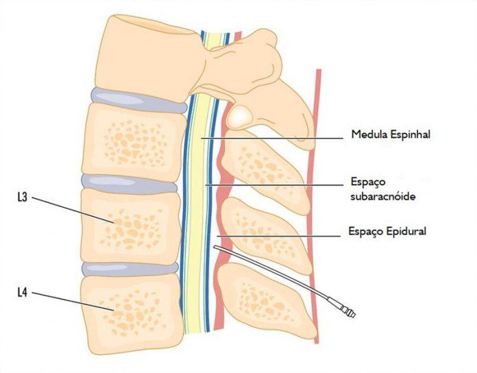 anestesia epidural com sedação