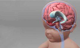 Hidrocefalia em Bebê: sintomas, causas, tratamento