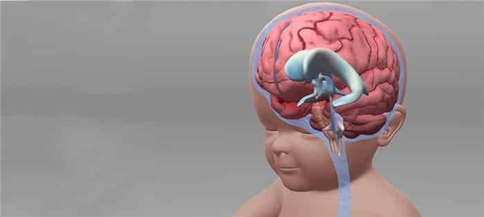 hidrocefalia em crianças