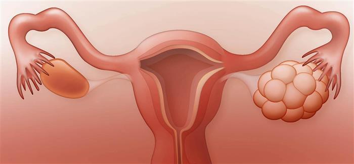 tratamento para ovario policistico